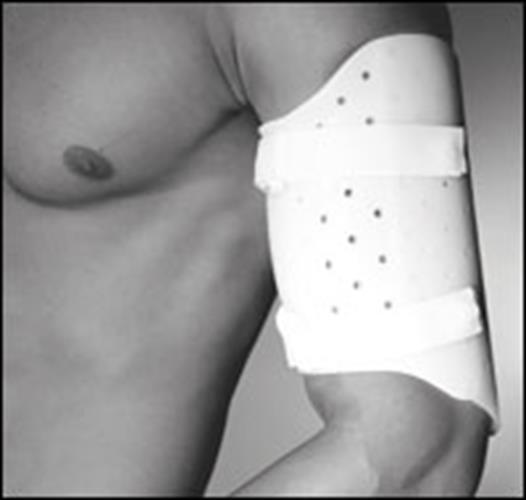 סד לשבר בעצם הזרוע (הומרוס) מגן לאיחוי שברים בזרוע ללא כותפת Humerus Fracture Brace Functional Brace